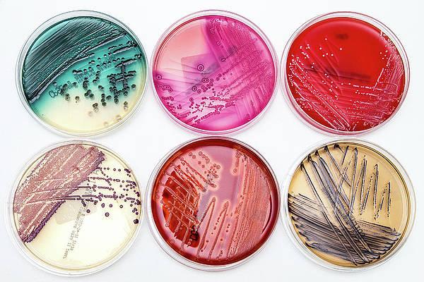 Microbial culture medium